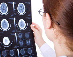 List Of Neurological Diseases